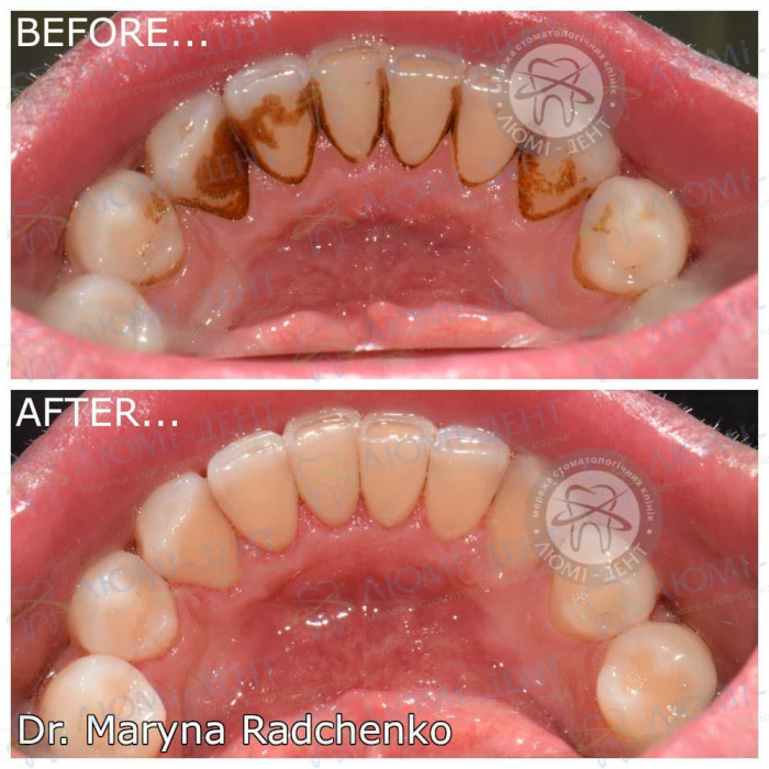 Профілактика захворювань зубів і ясен фото ЛюміДент
