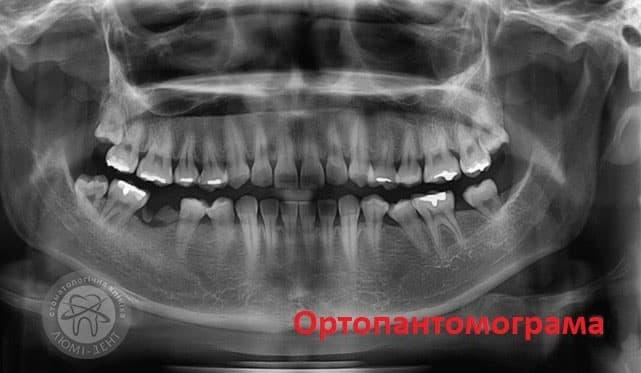 Телерентгенограма фото ЛюміДент
