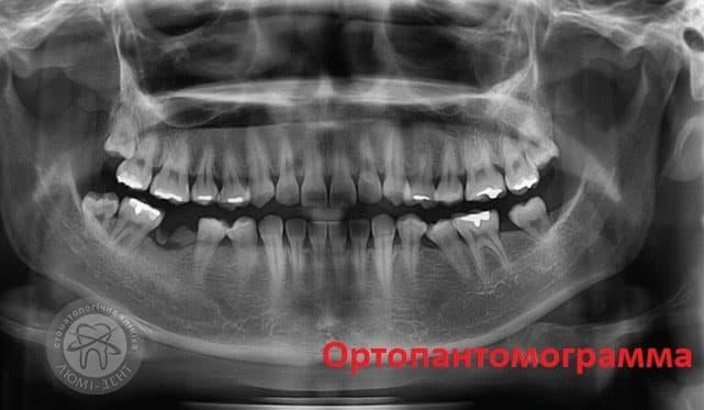 Телерентгенограмма фото ЛюмиДент