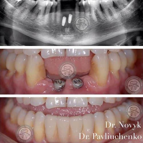 Установка металлокерамических зубов