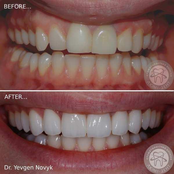 Ultrasound teeth photo Kiev Lumi-Dent