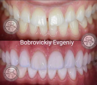 Виниры на зубы цена фото до и после отзывы Киев Люмидент