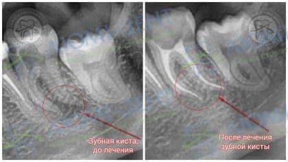 Кіста зуба лікування Київ фото Люмі-Дент