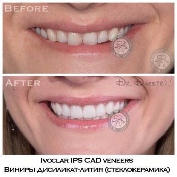 veneers Kiev, photo, before and after