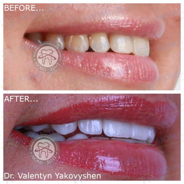 Виниры на зубы фото до и после цена Киев Люми-Дент