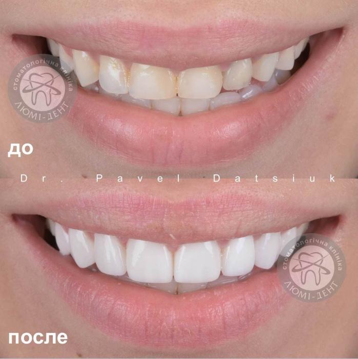 Протезування зубів ціна Київ фото Люмі-Дент