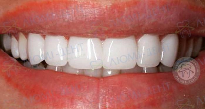 Люминиры для зубов фото до после Люмидент