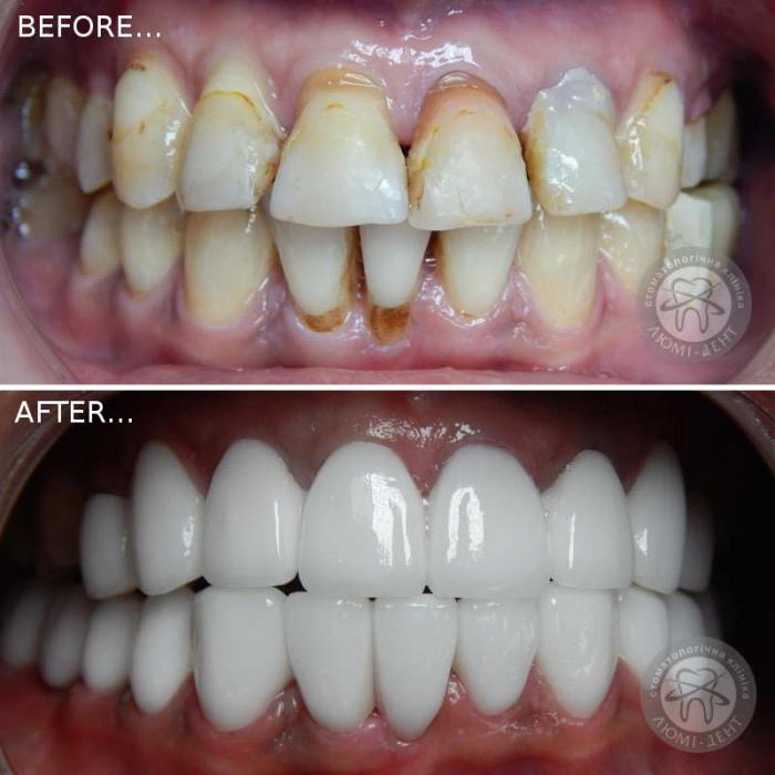 Dental crowns on teeth which are better photo Lumi-Dent
