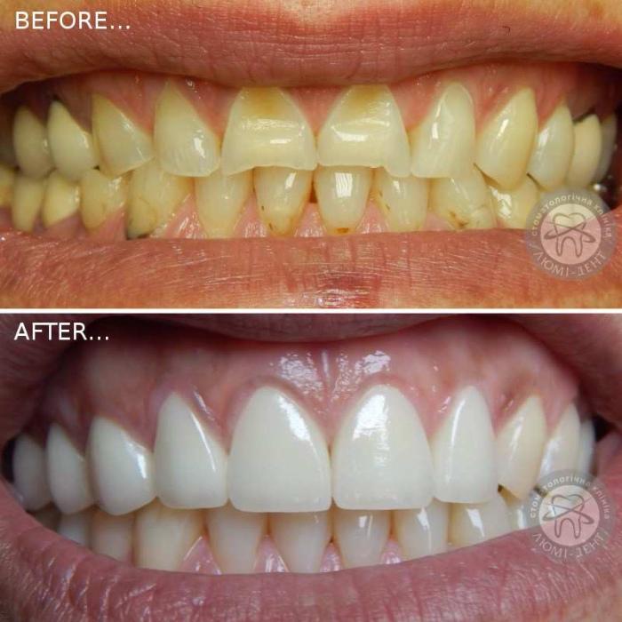 Crowns on front teeth photo price Lumi-Dent Kiev
