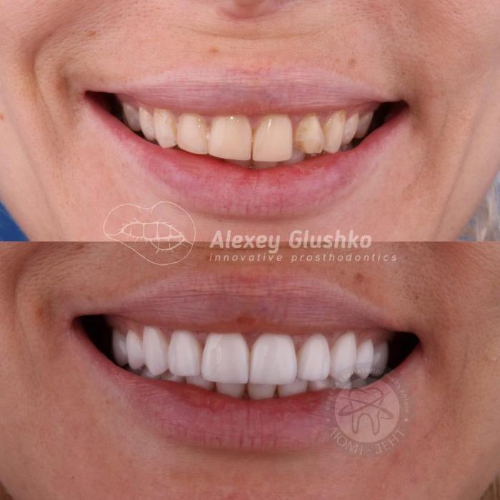 Виниры на зубы фото Люмидент