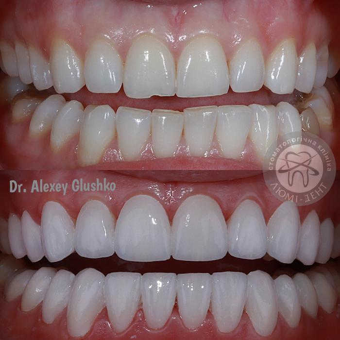 Вініри або реставрація зубів Київ фото Люмі-Дент