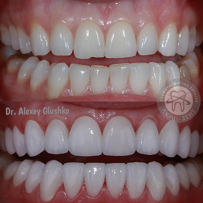 Teeth veneers photo pics Lumi-Dent