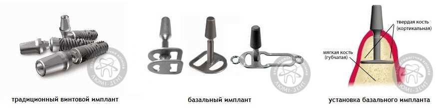 Одномоментная базальная имплантация зубов Киев цена отзывы Люми-Дент