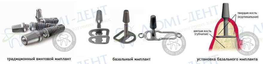 Виды имплантов зубов цены рейтинг Киев Люми-Дент