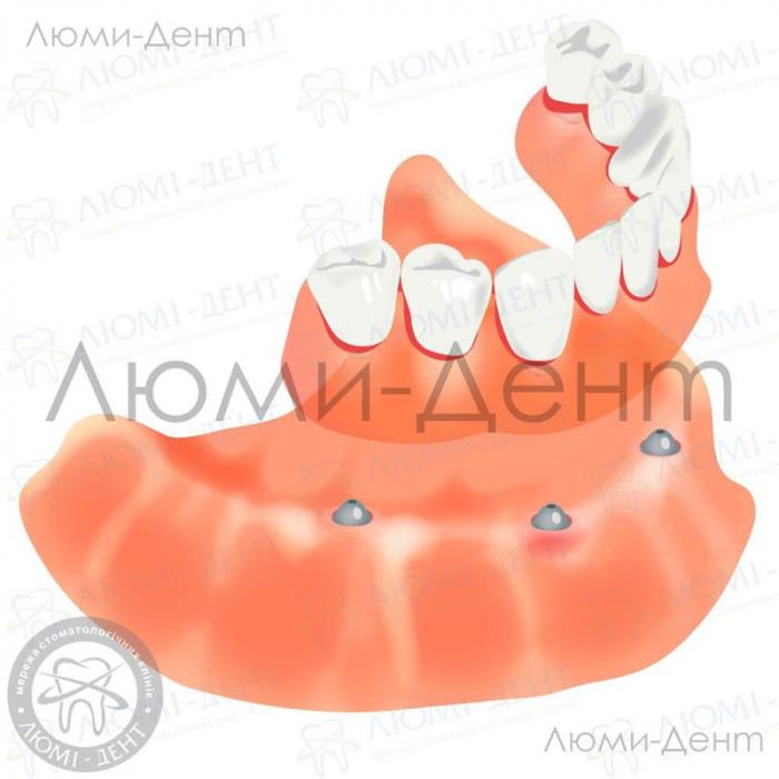 уход за акриловыми зубными протезами фото ЛюмиДент