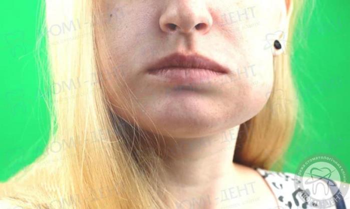 біль в щелепному суглобі фото ЛюміДент