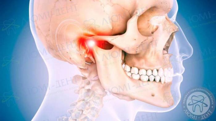 ниюча біль в щелепі фото ЛюміДент