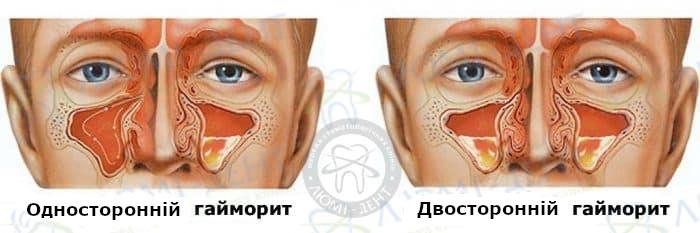 гайморит симптоми фото ЛюміДент