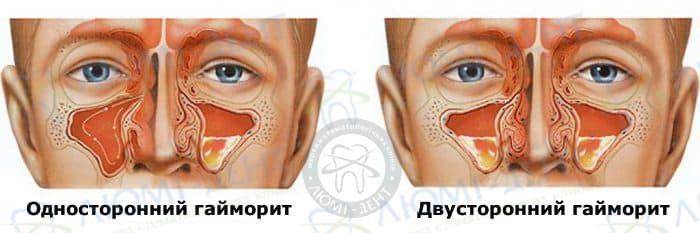 гайморит симптомы фото ЛюмиДент