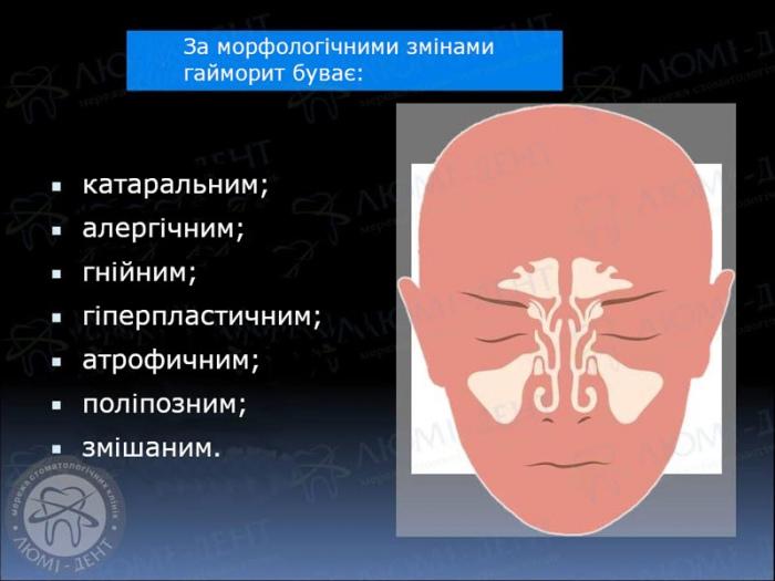 симптоми гаймориту фото ЛюміДент