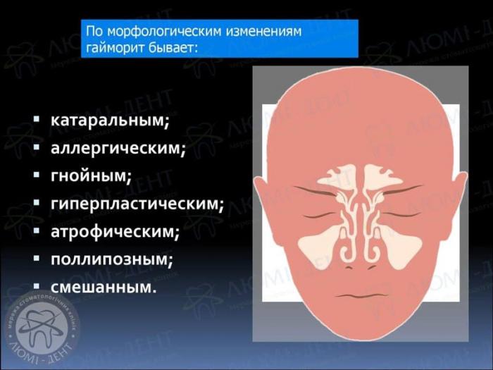 симптомы гайморита фото ЛюмиДент