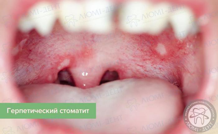 герпесный стоматит фото ЛюмиДент