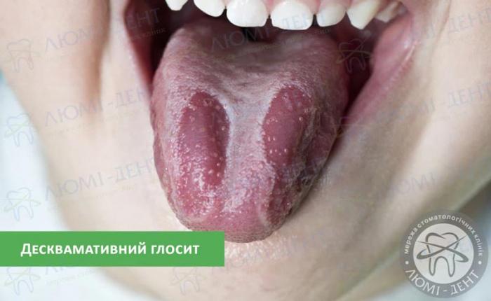 запалення на язику фото ЛюміДент