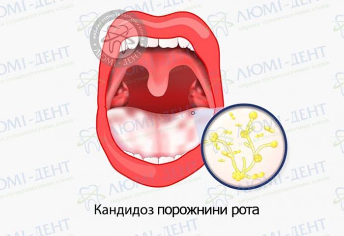 Кандидоз у роті фото ЛюміДент