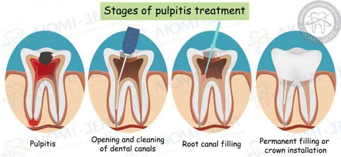 Dental treatment of teeth photo LumiDent