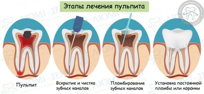 Стоматологическое лечение зубов фото ЛюмиДент