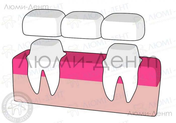 что такое несъемные зубные протезы фото ЛюмиДент