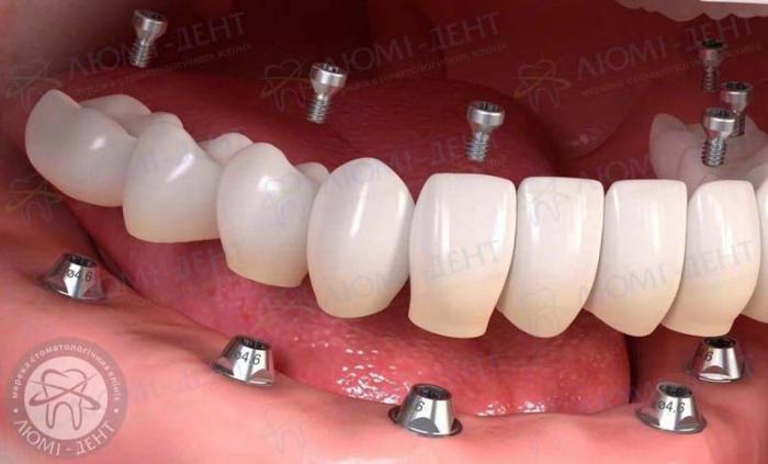несъемное протезирование зубов это фото ЛюмиДент