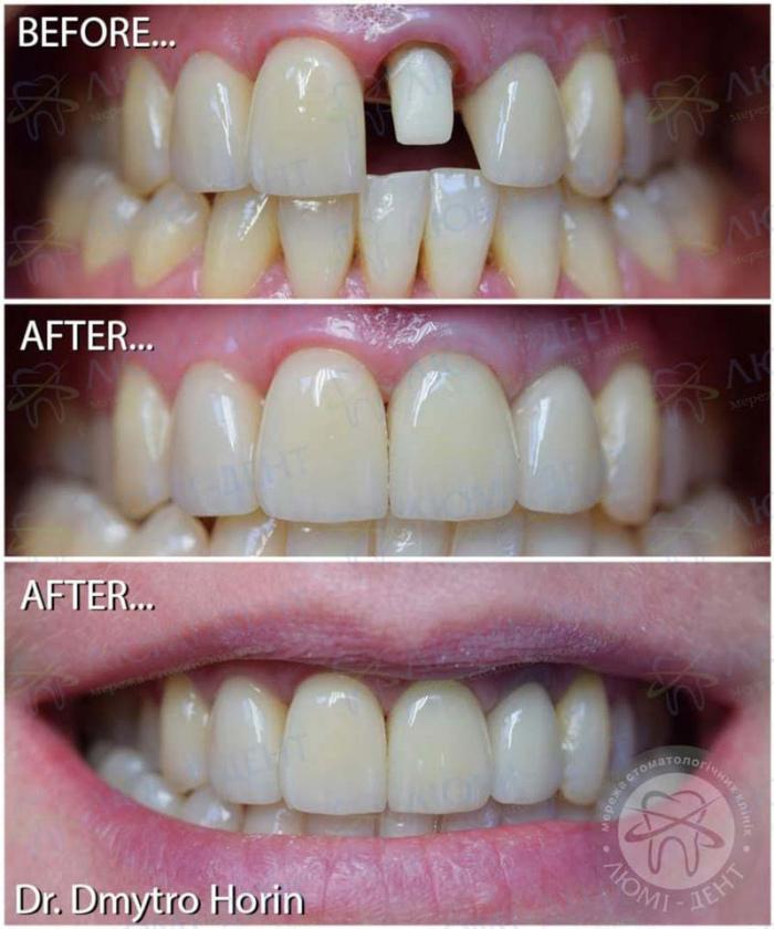 несъемное протезирование зубов фото ЛюмиДент