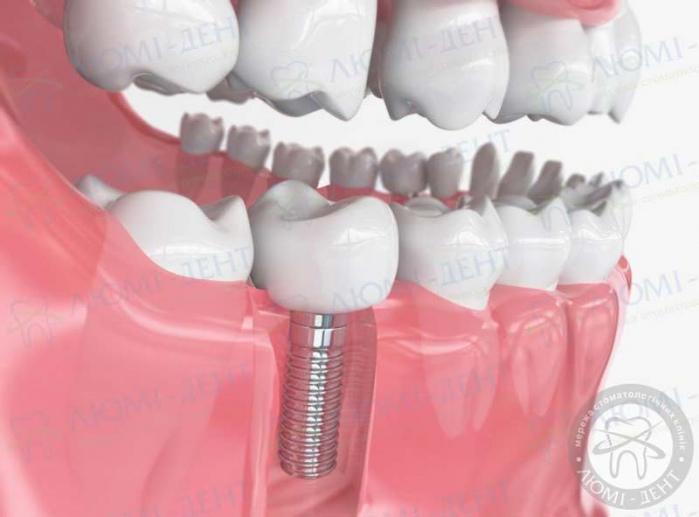 несъемное протезирование зубов виды фото ЛюмиДент