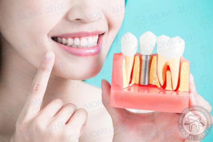 несъемные зубные протезы фото ЛюмиДент