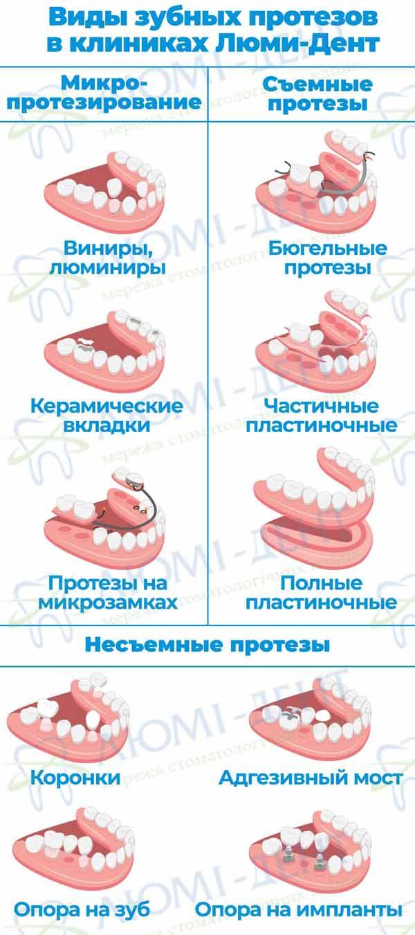 несъемные зубные протезы нового поколения фото ЛюмиДент
