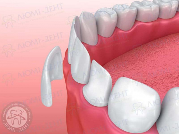 несъемные зубные протезы какие лучше фото ЛюмиДент