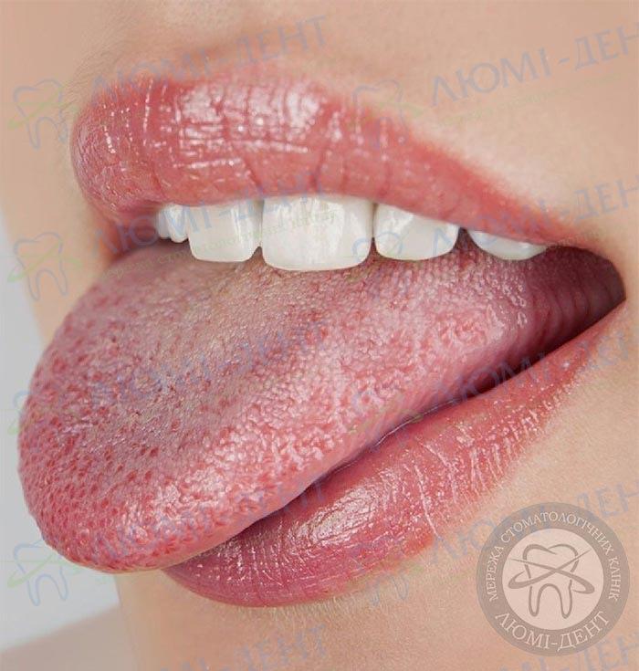опух язык фото ЛюмиДент