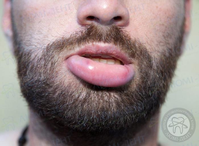 опухла губа что делать фото ЛюмиДент