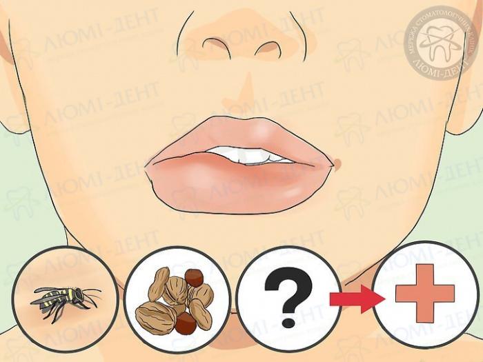 опухла губа причины фото ЛюмиДент