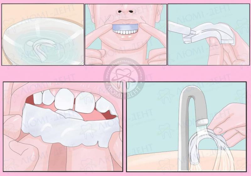 капа для зубів відбілювання фото ЛюміДент