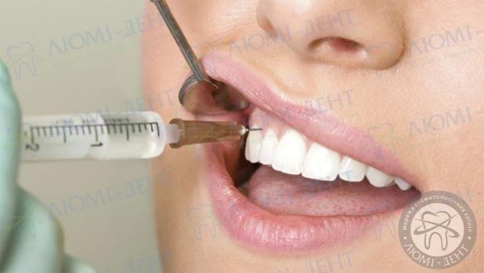 Плазмоліфтинг в стоматології фото ЛюміДент