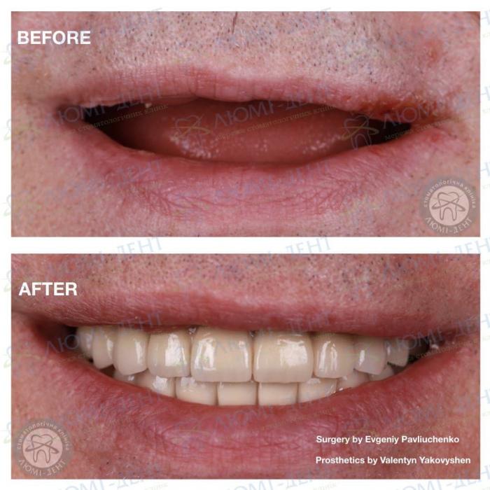 Частичная потеря зубов фото ЛюмиДент