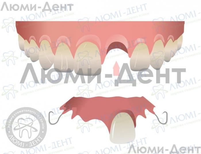 Полная потеря зубов фото ЛюмиДент