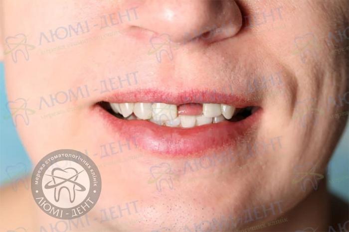 Потеря зубов фото ЛюмиДент