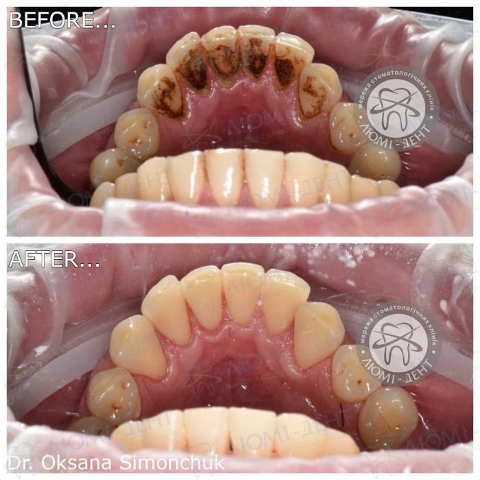 професійна чистка зубів етапи фото ЛюміДент