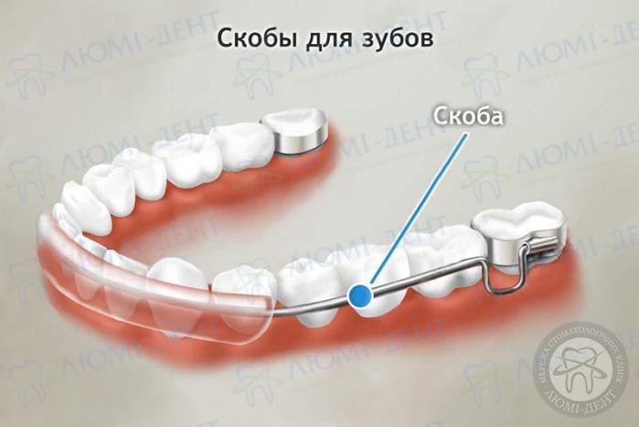 скобы для зубов фото ЛюмиДент