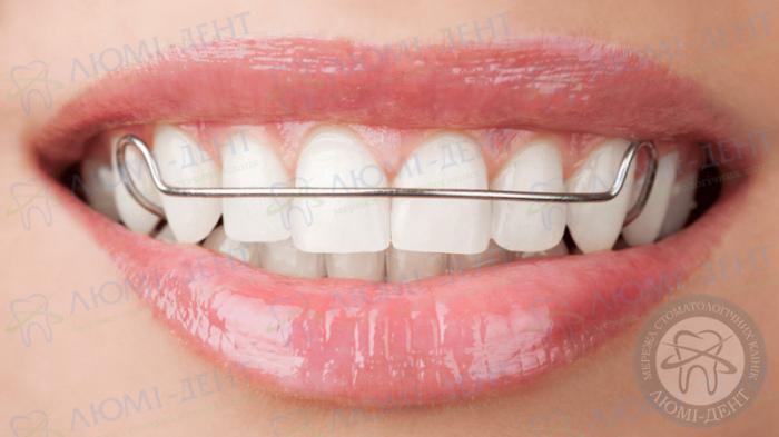 скобы на зубы фото ЛюмиДент
