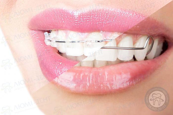 зубные скобы фото ЛюмиДент