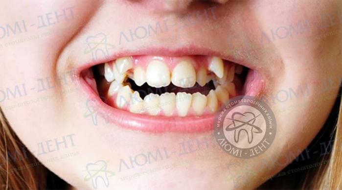 Зайві зуби фото ЛюміДент